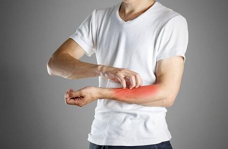 symptoms of flea bite on humans